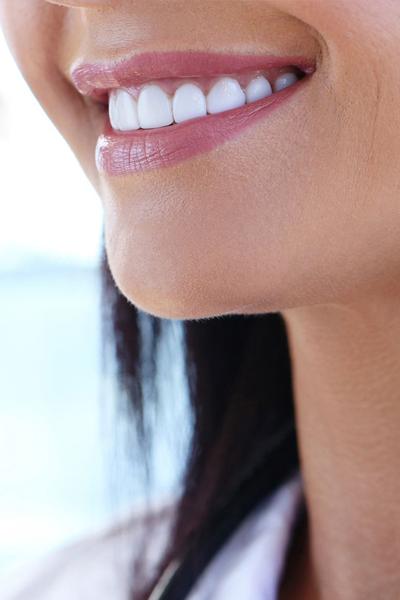 Tratamientos dentales Odontoestetica Mónica Arranz. Madrid