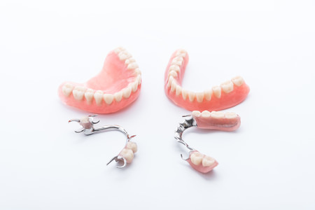 Prótesis dental removible