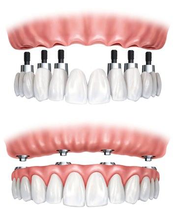 Protesis sobre implantes. Odontoestética. Clínica Dental Mónica Arranz. Tres Cantos. Madrid