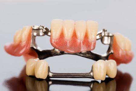 Prótesis dental. Centro odontologico y estetico Dra. Monica Arranz. COED. Tres Cantos, Madrid.
