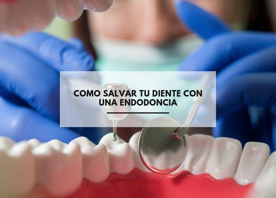 Como salvar tu diente con una endodoncia
