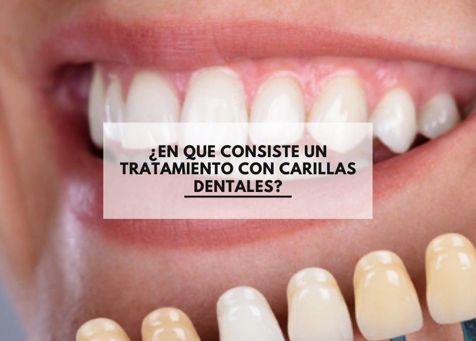 ¿En que consiste un tratamiento con carillas dentales?
